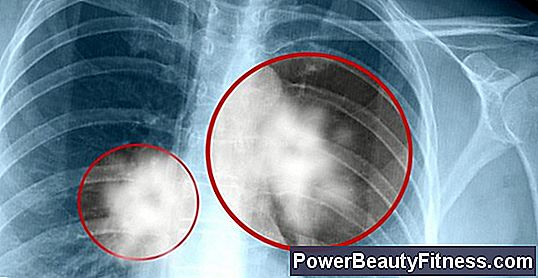 Rata de supravieţuire în cancer - Cancer