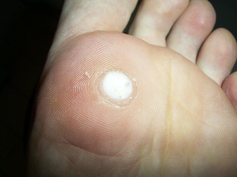 Wart on foot and finger