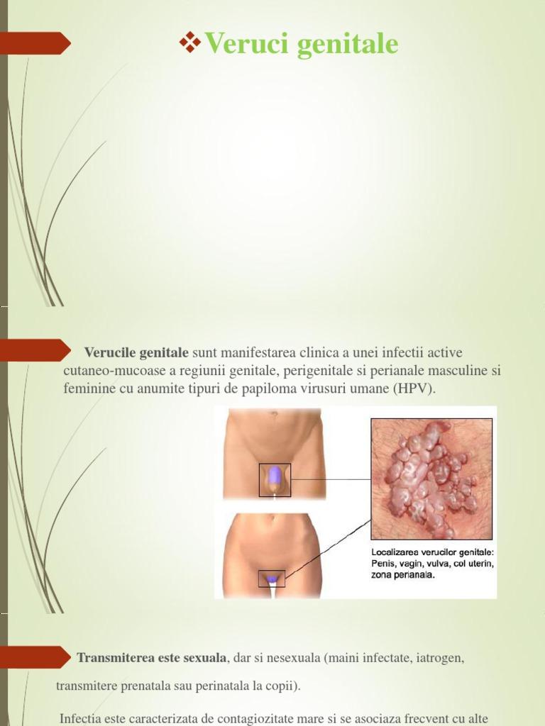 Diagnosticul și tratamentul negilor genitali