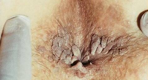 infecție a verucilor genitale
