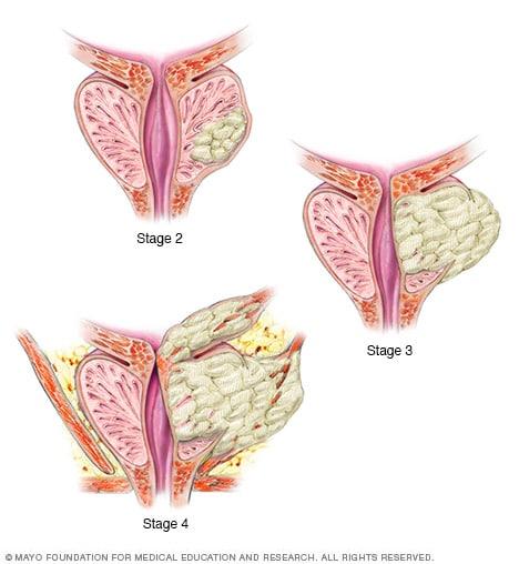 cancer de prostata fase 4