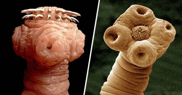 paraziți de viermi din specia umană