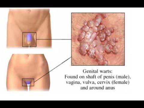 cancer pared abdominal zinc dysbiosis