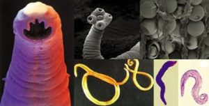 paraziti u telu ciscenje