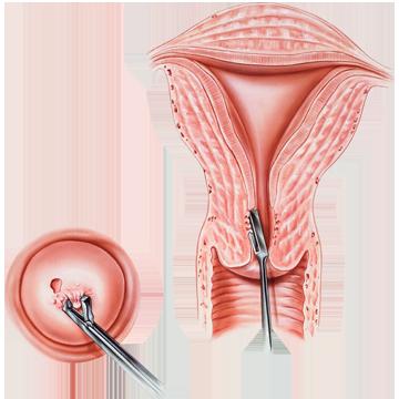 îndepărtarea condilomului colului uterin)