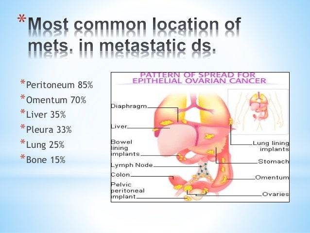 endometrial cancer lower back pain)