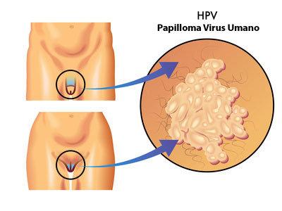 guarigione da papilloma virus)
