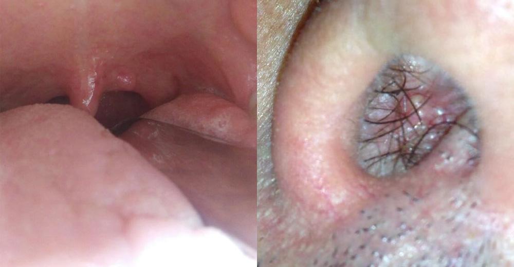 tumore lingua papilloma virus)