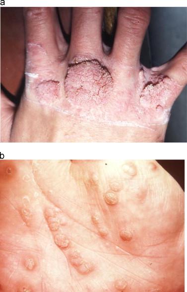 hpv skin manifestation
