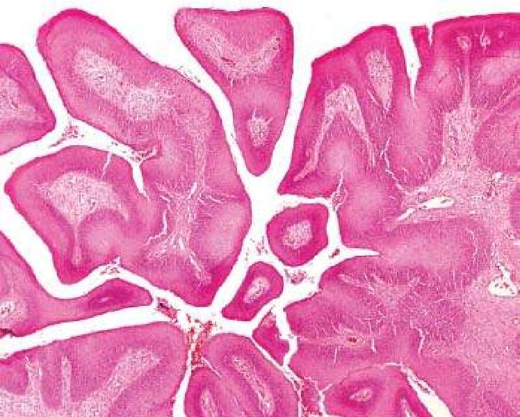 Inverted papilloma nedir, Papilloma and carcinoma. Meniu de navigare