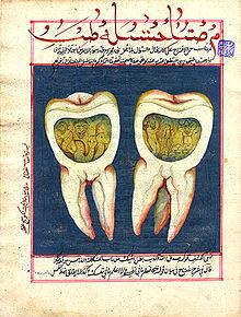 dentist tapeworm