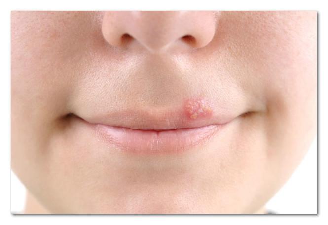 hpv ili herpes)