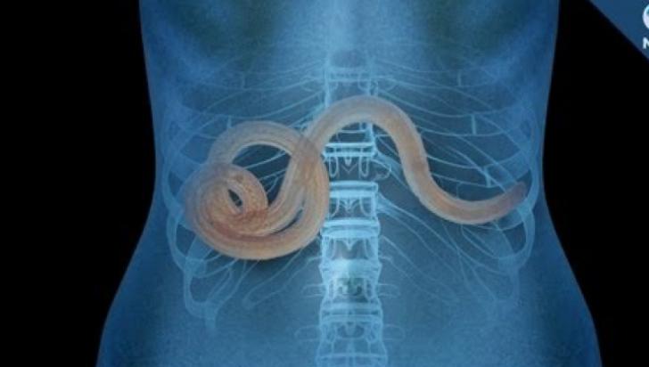 simptomele paraziților în tratamentul corpului