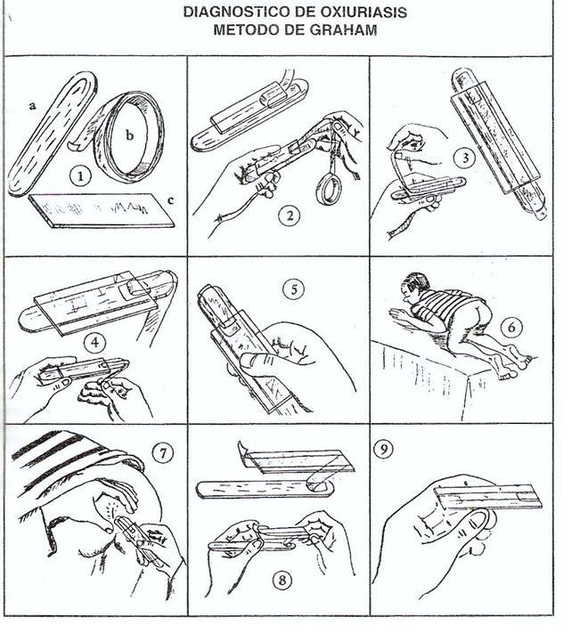 Tecnica de Graham, Metodo de graham oxiuros