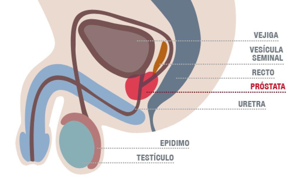 cancer prostata vesicula seminal)