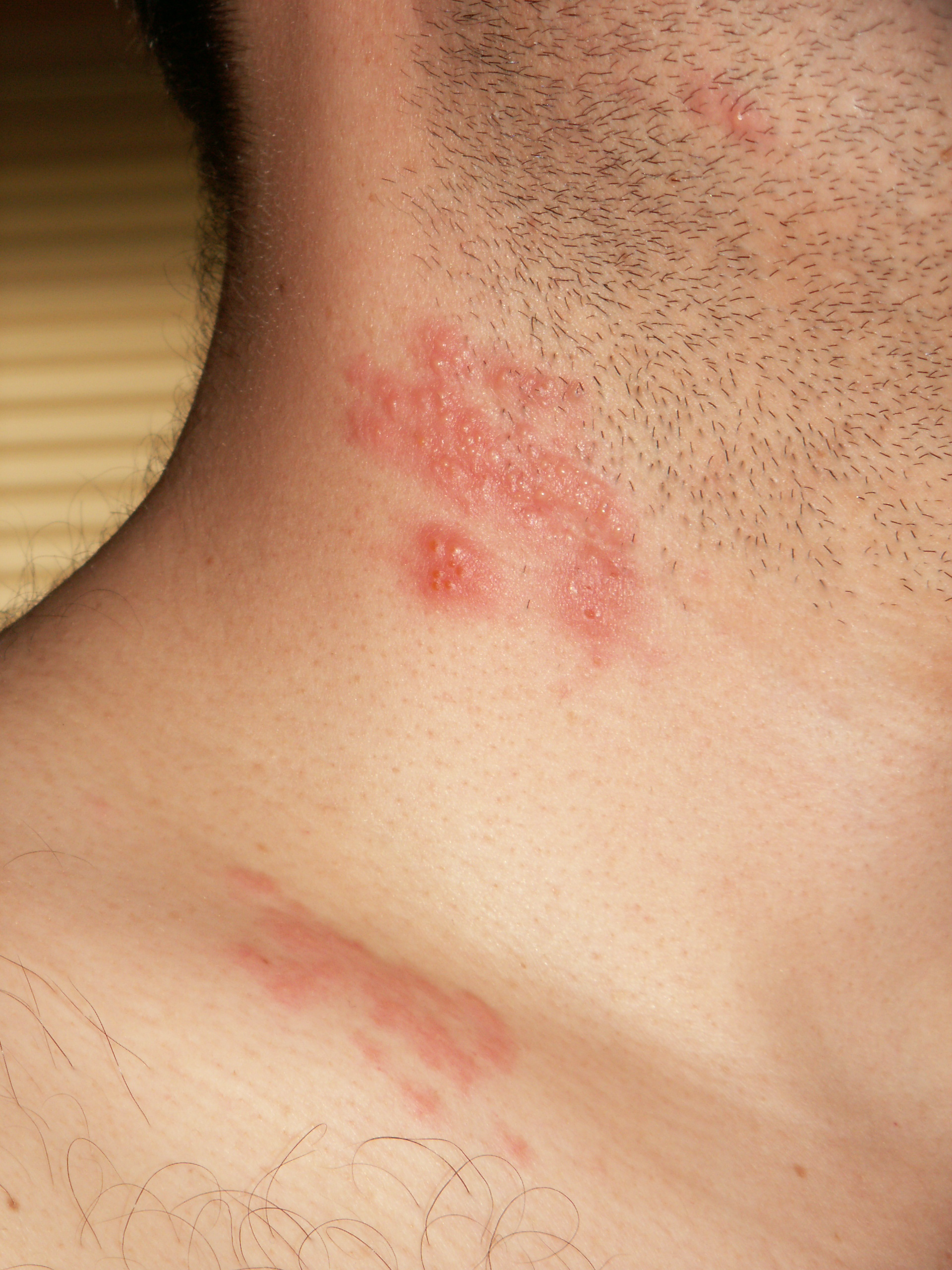 Hpv and skin rash. Human papillomavirus patient uk doctor