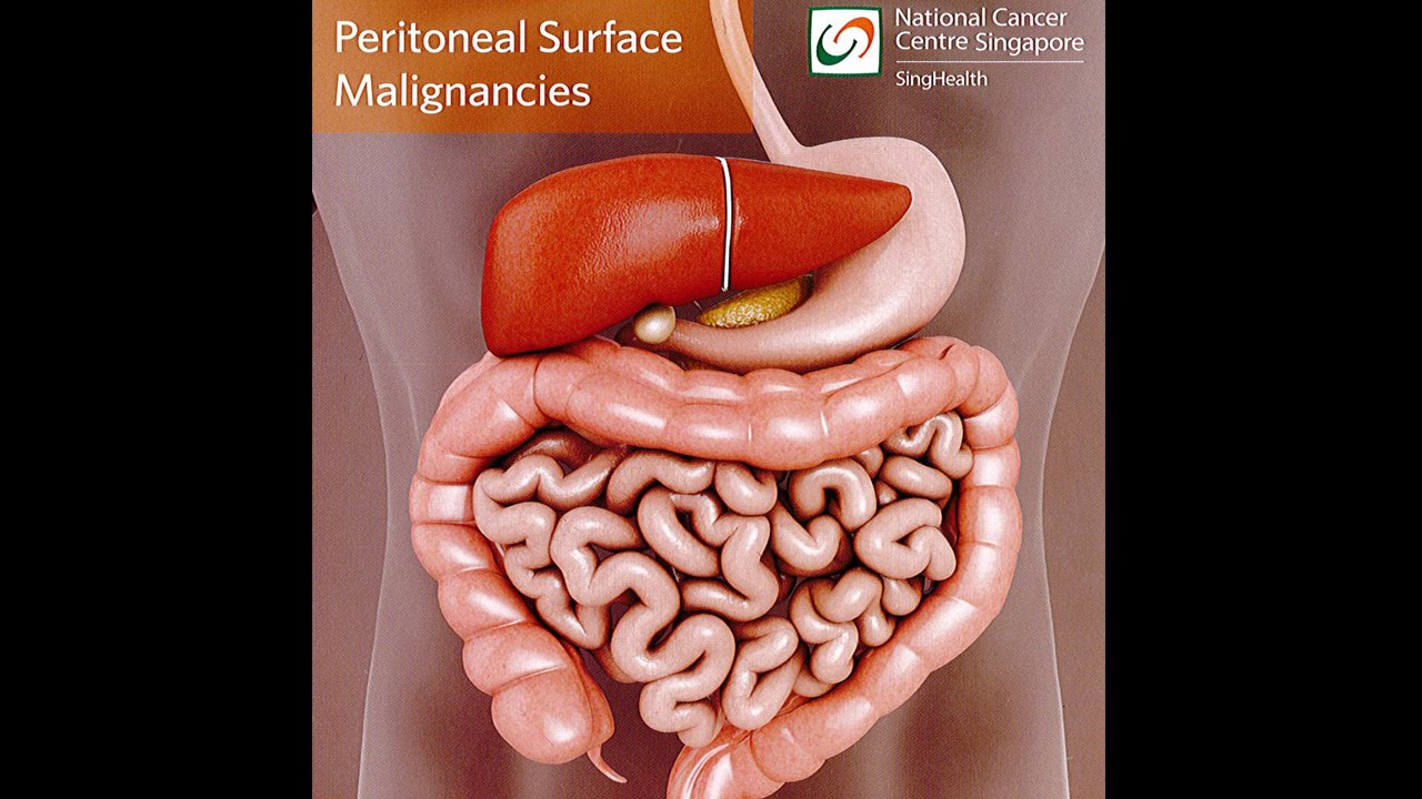 cancer zona peritoneal)
