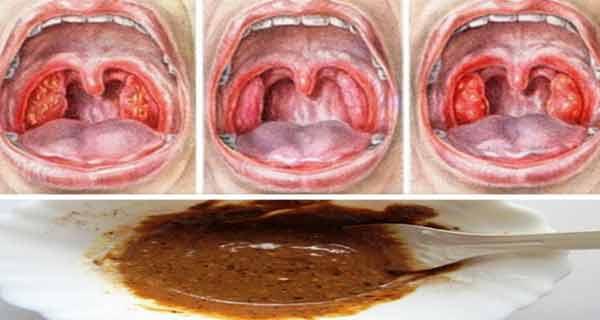 tratamentul durerilor de gât