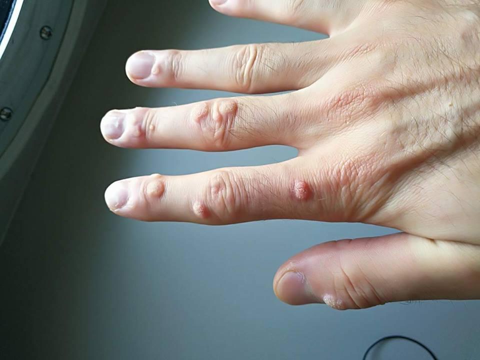 negi pe degetele de la mana