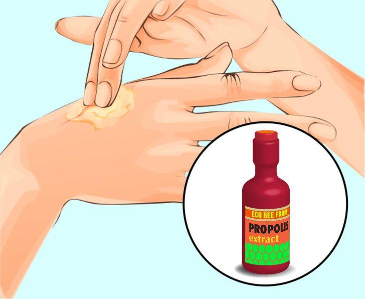 papillomas and warts)