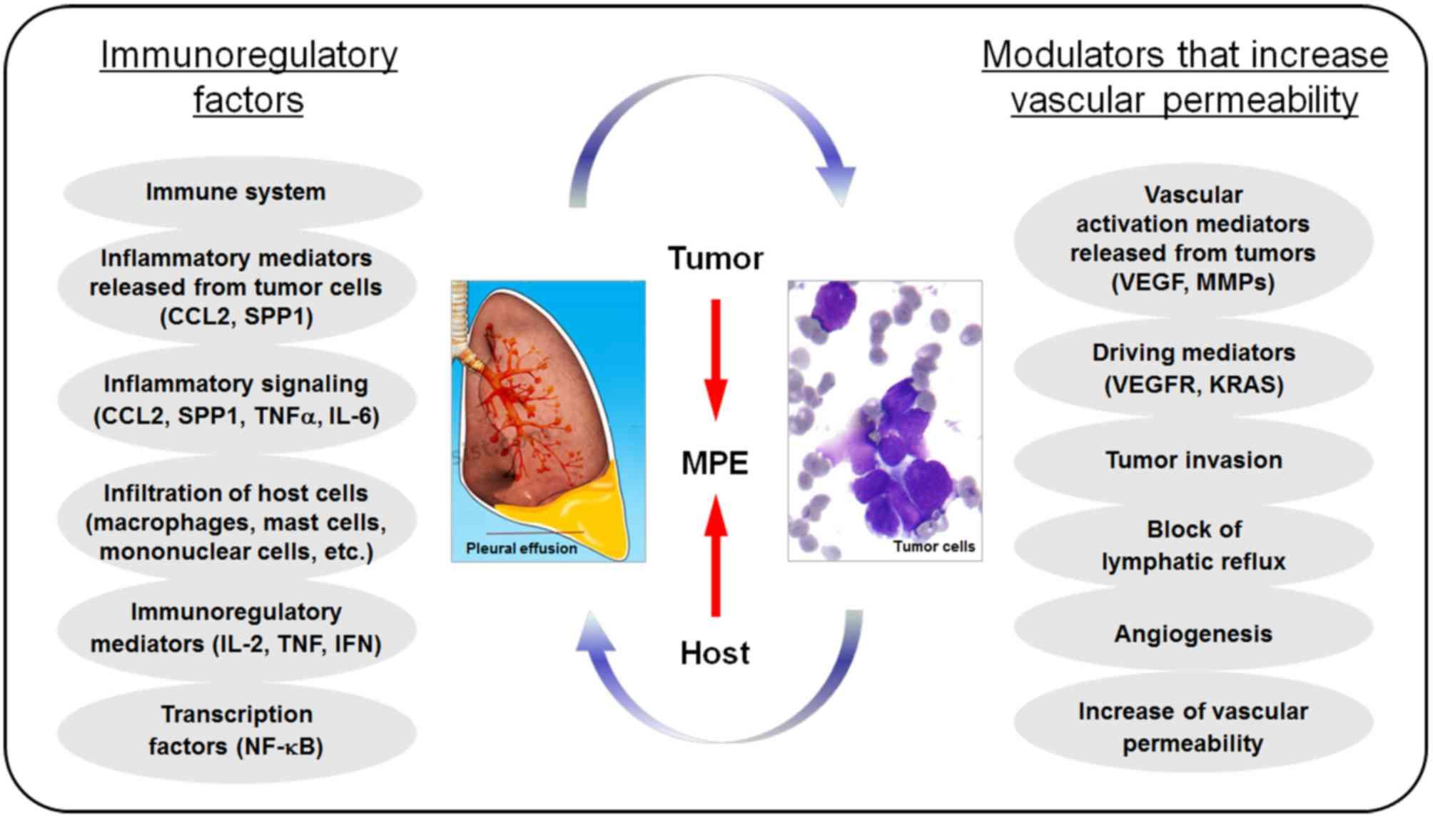 peritoneal cancer pleural effusion)