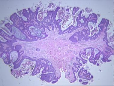 Fibroepithelial papilloma causes, Recent Posts Fibroepithelial papilloma