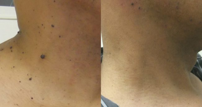 cancer de piele prima faza)