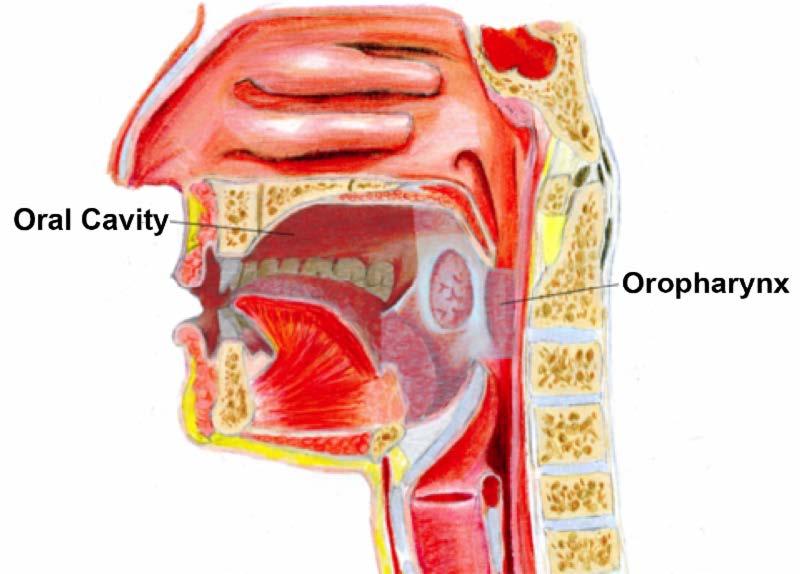 Hpv tongue base cancer