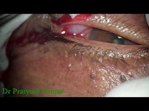 humani papiloma virus kod muskaraca îndepărtarea ferigilor
