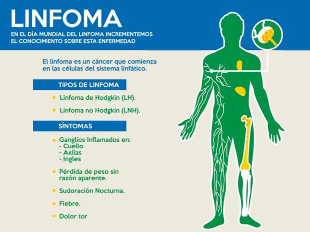 cancer linfoma hodgkin sintomas