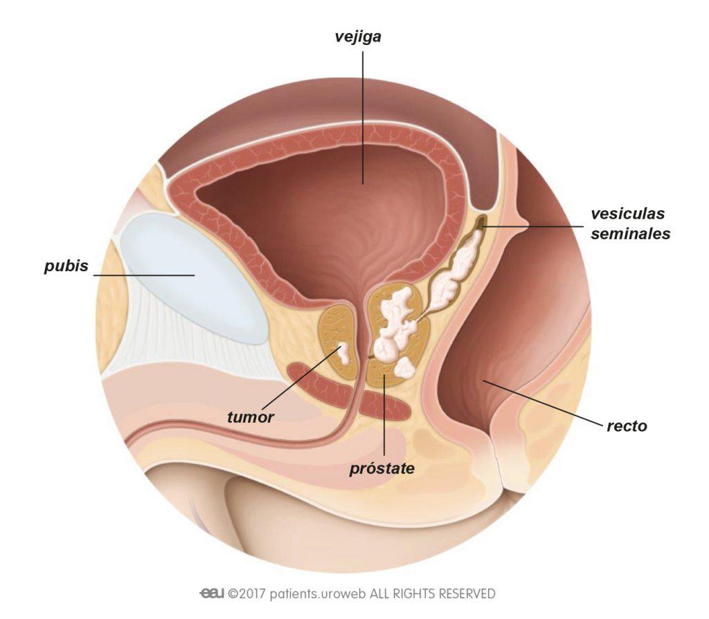 cancer de prostata avanzado)