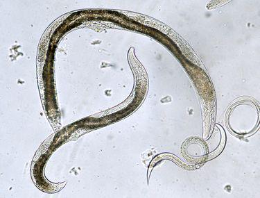 picături de parazit pentru omul nano