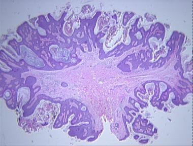 fibroepithelial papilloma skin)