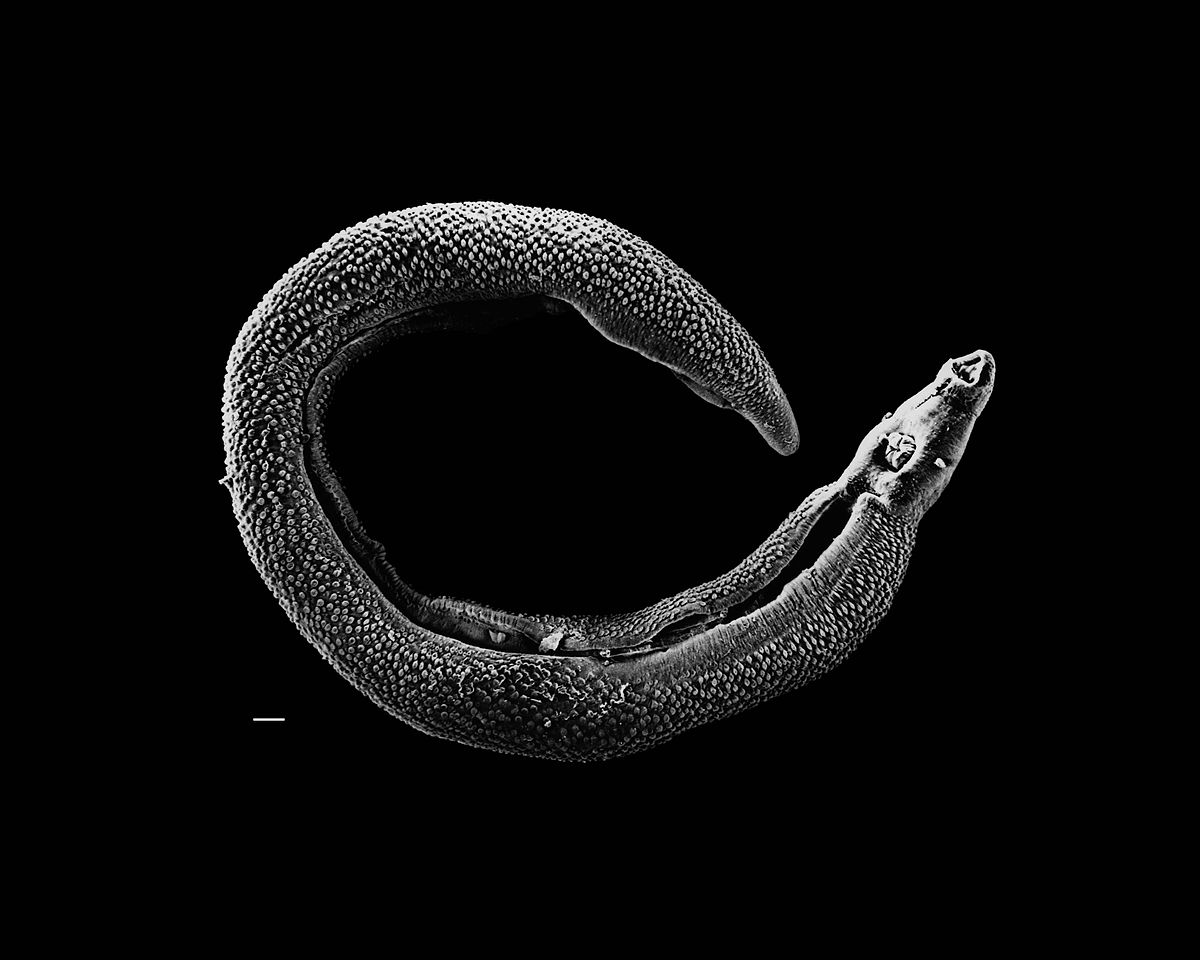 paraziti schistosom