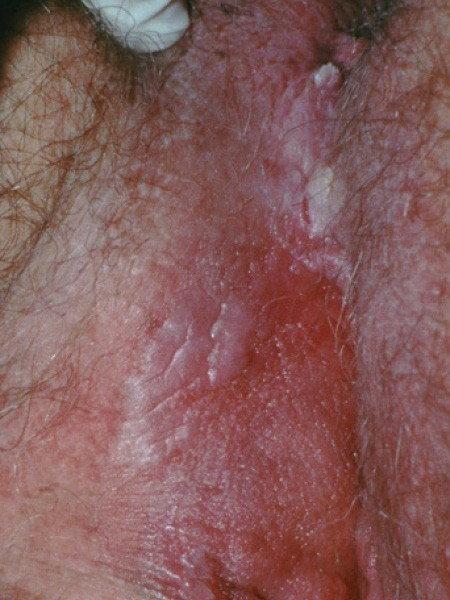 Signs and symptoms of papillomas