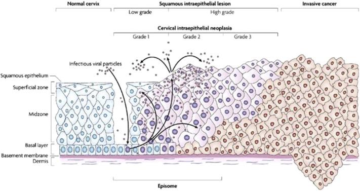 Human papillomavirus testing in the prevention of cervical cancer