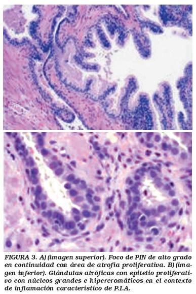 cancer de prostata histologia)