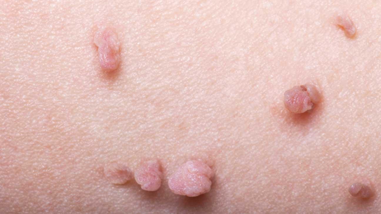 Hpv wart foot, Fișier:Papilloma Virus (HPV) info-tecuci.ro - Wart on foot from hpv