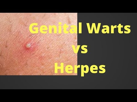 Hpv vs herpes pictures