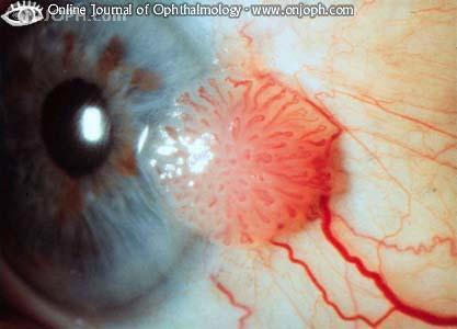Papilloma in eye treatment