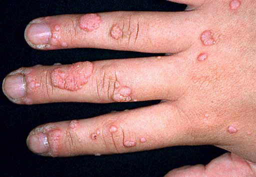 Warts on hands roots