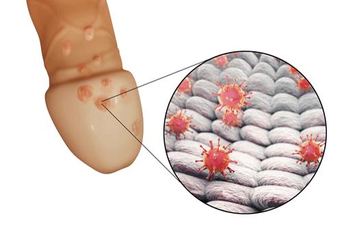 hpv virus genital herpes)