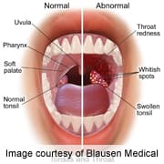 hpv swollen tongue)