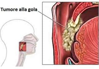 papilloma virus mal di gola