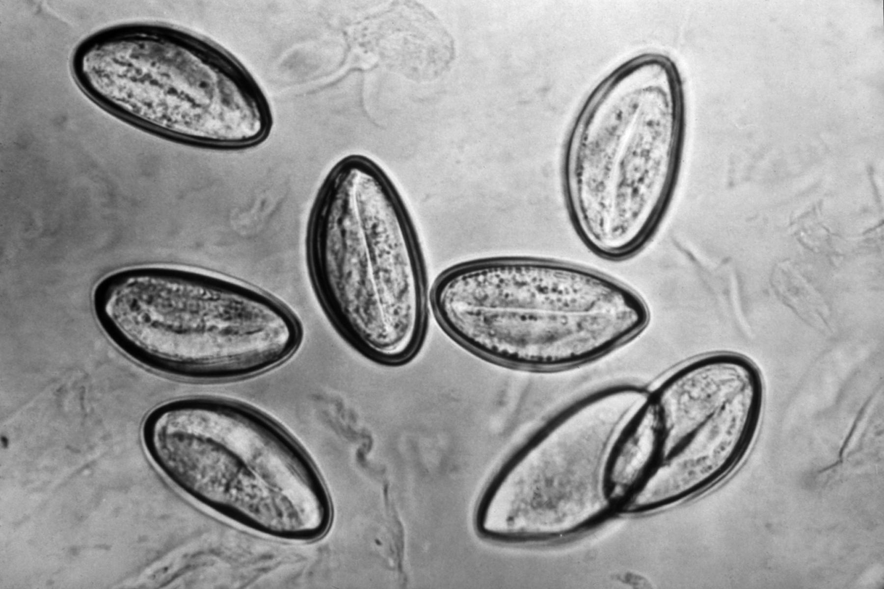 Paraziti kod djece simptomi