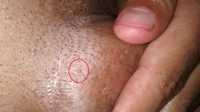 condiloame la bărbați droguri intraductal papillomatosis pathology outlines