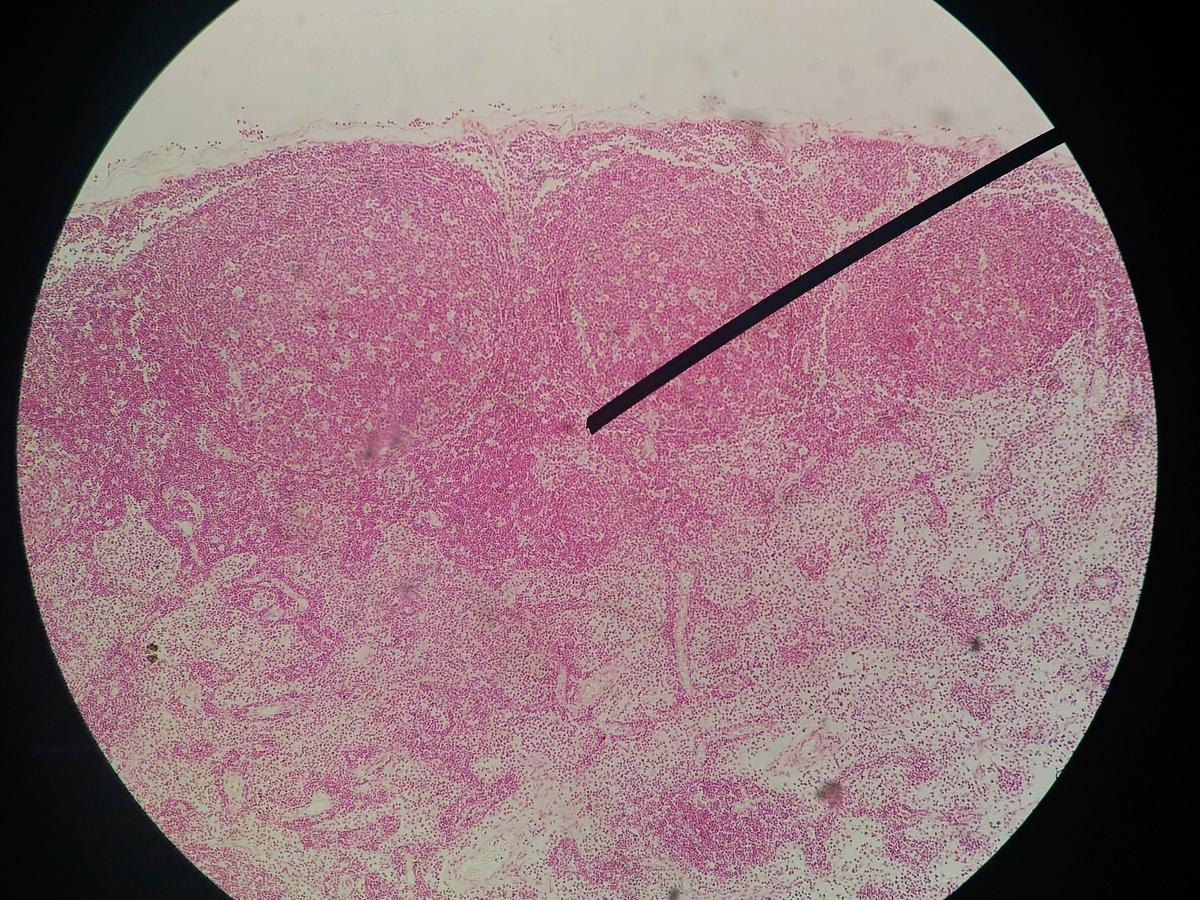 papilloma virus trasmissione preservativo hpv virus symptoms in females