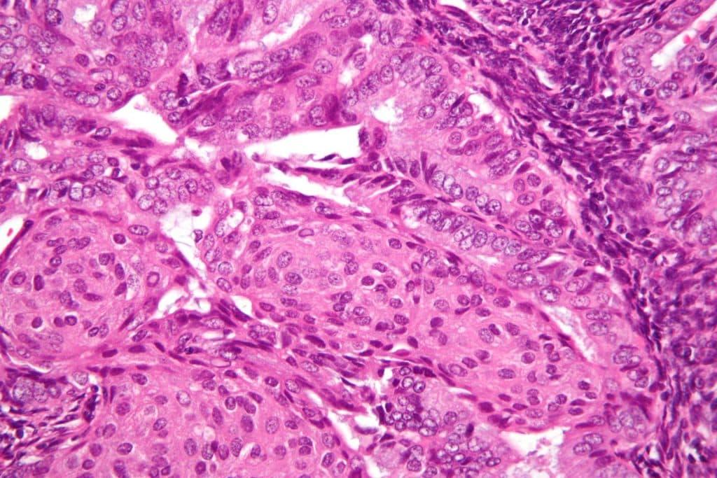 endometrial cancer mirena