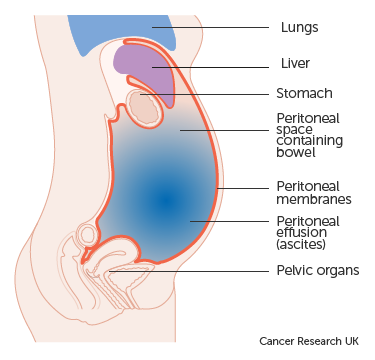 Cancer and abdominal bloating, Cancer and abdominal bloating