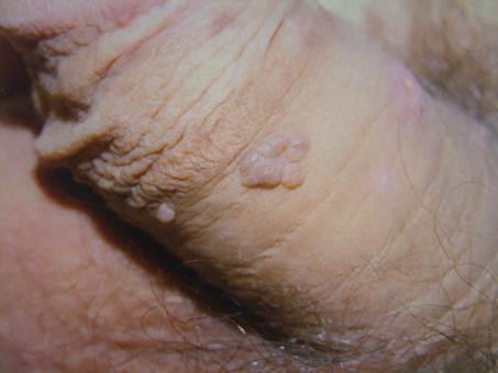 papilloma virus gyogyitasa)